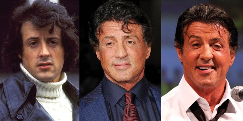 sylvester stallone before and after plastic surgery 2019