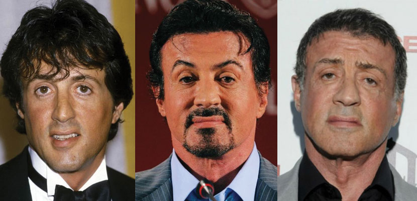 sylvester stallone plastic surgery before and after 2019