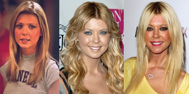 tara reid plastic surgery before and after 2021
