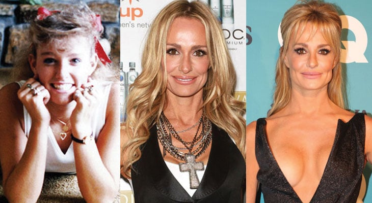 taylor armstrong before and after plastic surgery 2017