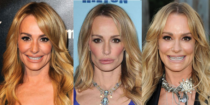 taylor armstrong plastic surgery before and after 2017