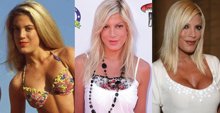 tori spelling before and after plastic surgery 2017