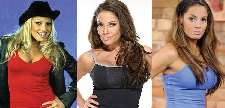 trish stratus before and after plastic surgery 2017