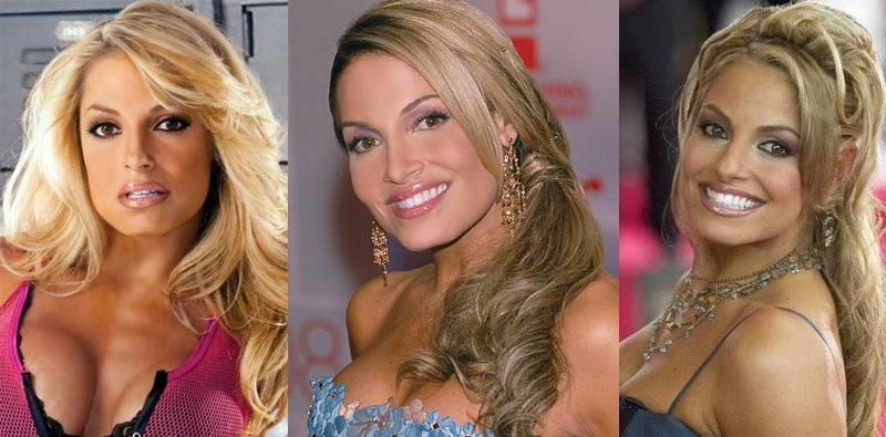 trish stratus plastic surgery before and after 2017