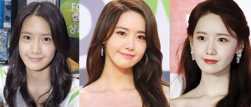 yoona before and after plastic surgery 2020